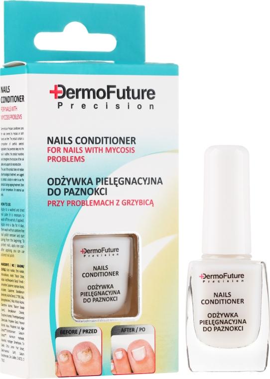 Kurz léčby proti plísni nehtů - DermoFuture Course Of Ttreatment Against Nail Fungus